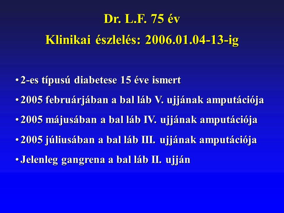 Dr. L.F. 75 év Klinikai észlelés: 2006.01.04-13-ig 2-es típusú diabetese 15 éve ismert2-es típusú diabetese 15 éve ismert 2005 februárjában a bal láb