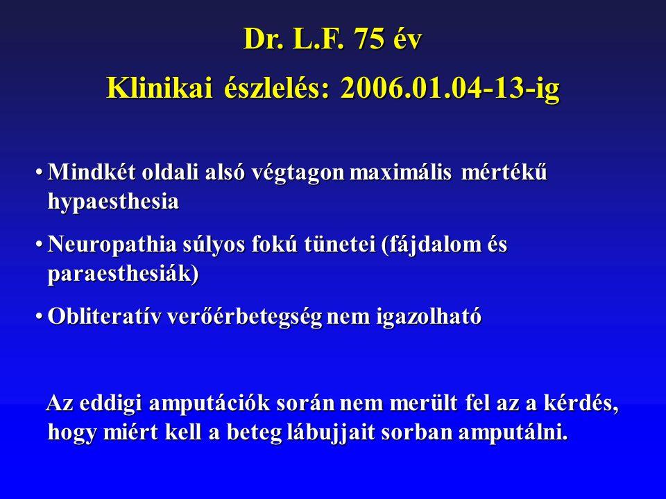 Dr. L.F. 75 év Klinikai észlelés: 2006.01.04-13-ig Mindkét oldali alsó végtagon maximális mértékű hypaesthesiaMindkét oldali alsó végtagon maximális m