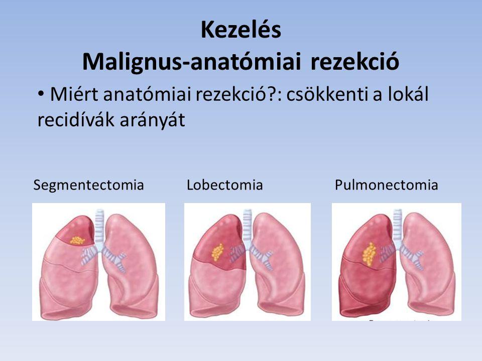 Kezelés Malignus-anatómiai rezekció Segmentectomia Lobectomia Pulmonectomia Miért anatómiai rezekció?: csökkenti a lokál recidívák arányát