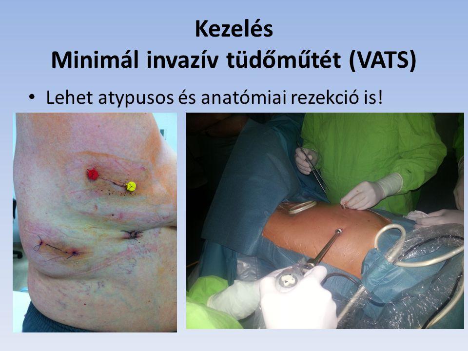 Kezelés Minimál invazív tüdőműtét (VATS) Lehet atypusos és anatómiai rezekció is!