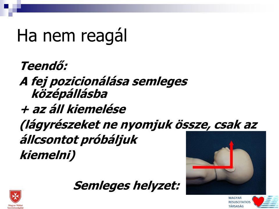 A fej pozicionálása az áll kiemelésével 2014. 12. 12. Dr. Lóczi Gerda