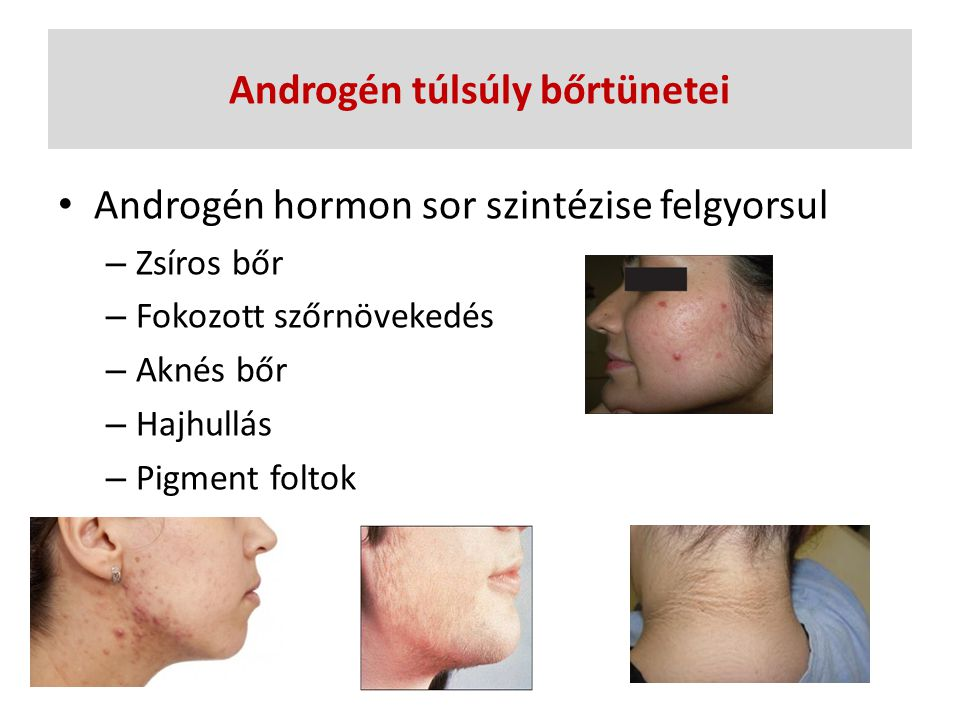 Androgén túlsúly bőrtünetei Androgén hormon sor szintézise felgyorsul – Zsíros bőr – Fokozott szőrnövekedés – Aknés bőr – Hajhullás – Pigment foltok