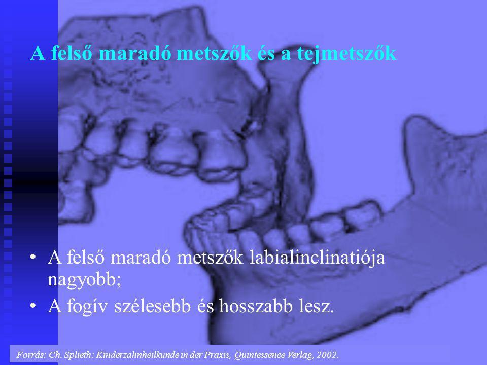 A felső maradó metszők és a tejmetszők Forrás: Ch. Splieth: Kinderzahnheilkunde in der Praxis, Quintessence Verlag, 2002. A felső maradó metszők labia
