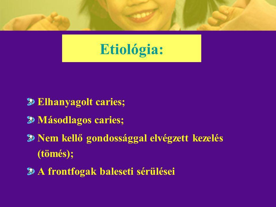 VITÁLAMPUTÁCIÓ (PULPOTÓMIA) A pulpacsonk fedése gyógyszeres kötéssel: A kezelés menete: = a gyógyszeres kötés megítélése: kalcium-hidroxid Ca(OH) 2 ; vasszulfát Fe 2 (SO 4 ) 3 ; formokrezol, Buckley (1904); glutáraldehid 2-5%.
