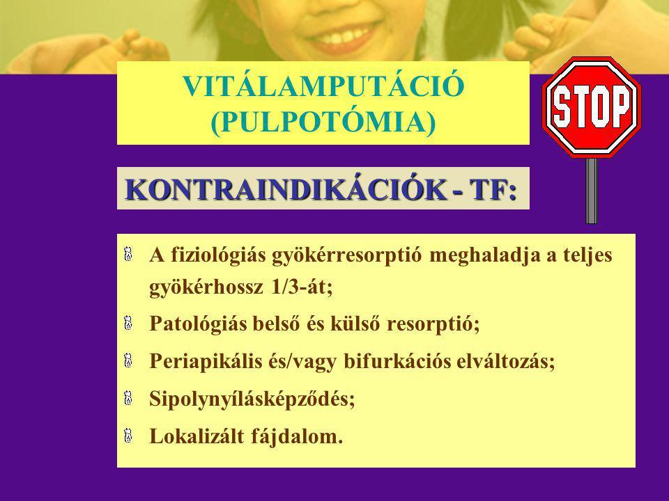 VITÁLAMPUTÁCIÓ (PULPOTÓMIA) A fiziológiás gyökérresorptió meghaladja a teljes gyökérhossz 1/3-át; Patológiás belső és külső resorptió; Periapikális és
