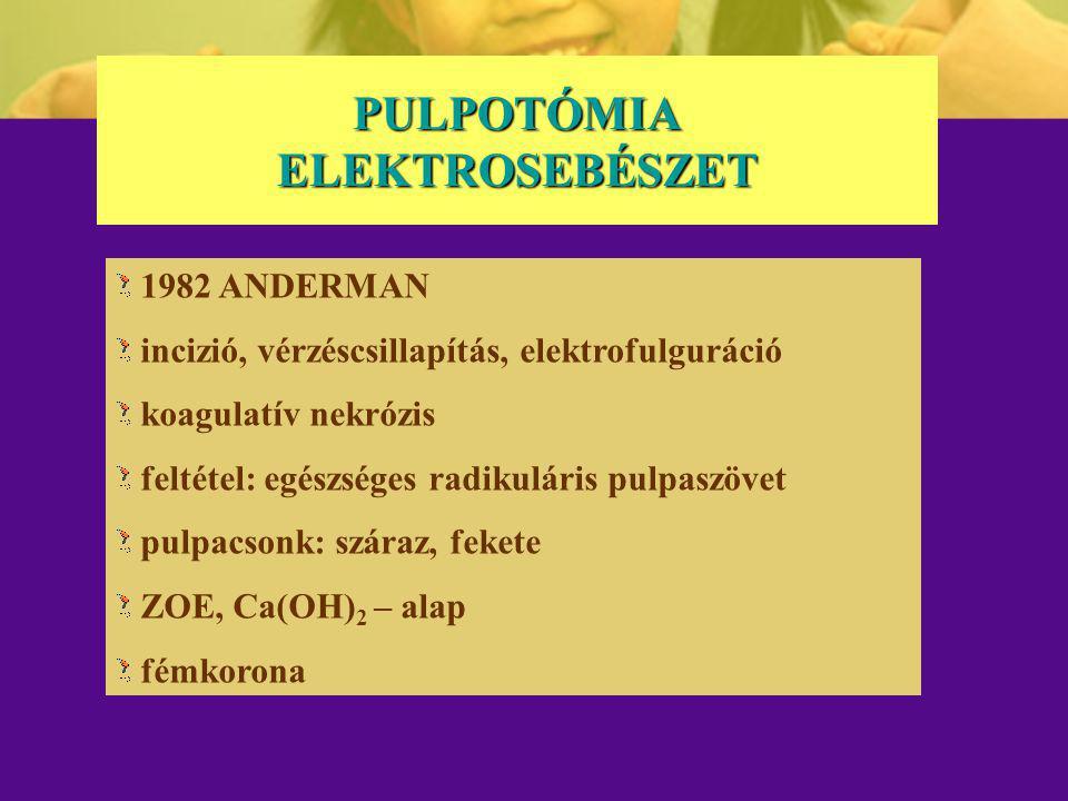 PULPOTÓMIA ELEKTROSEBÉSZET 1982 ANDERMAN incizió, vérzéscsillapítás, elektrofulguráció koagulatív nekrózis feltétel: egészséges radikuláris pulpaszöve