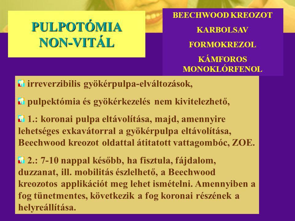 PULPOTÓMIA NON-VITÁL irreverzibilis gyökérpulpa-elváltozások, pulpektómia és gyökérkezelés nem kivitelezhető, 1.: koronai pulpa eltávolítása, majd, am