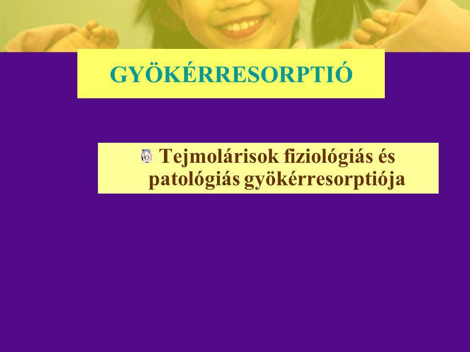 GYÖKÉRRESORPTIÓ Tejmolárisok fiziológiás és patológiás gyökérresorptiója