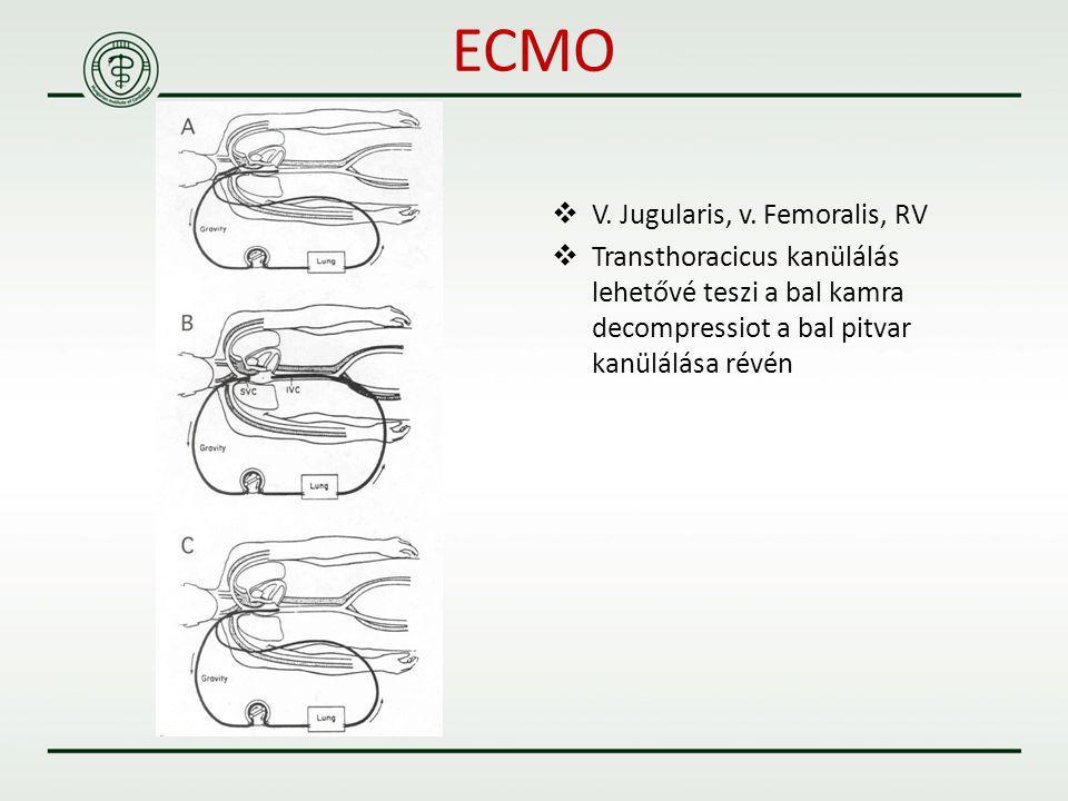  V. Jugularis, v. Femoralis, RV  Transthoracicus kanülálás lehetővé teszi a bal kamra decompressiot a bal pitvar kanülálása révén ECMO
