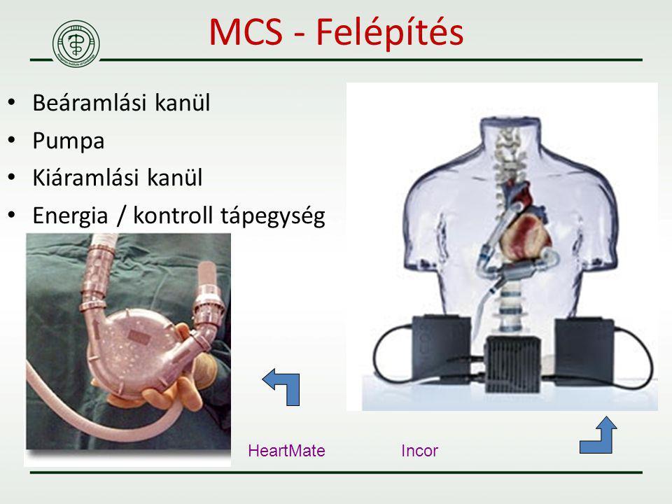 Beáramlási kanül Pumpa Kiáramlási kanül Energia / kontroll tápegység HeartMate Incor MCS - Felépítés