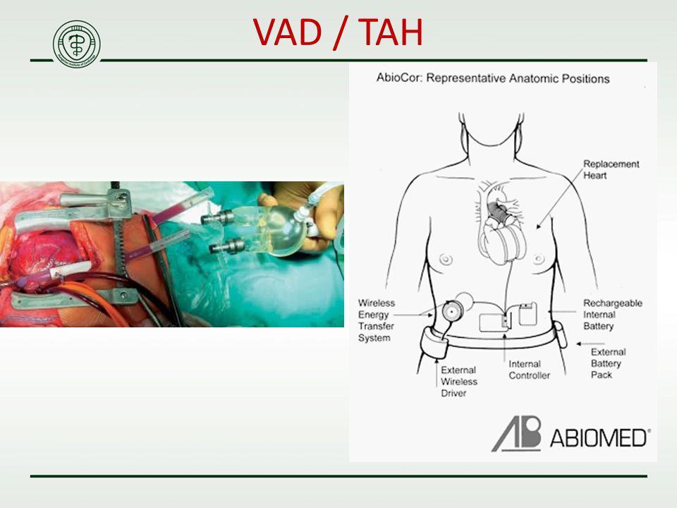 VAD / TAH