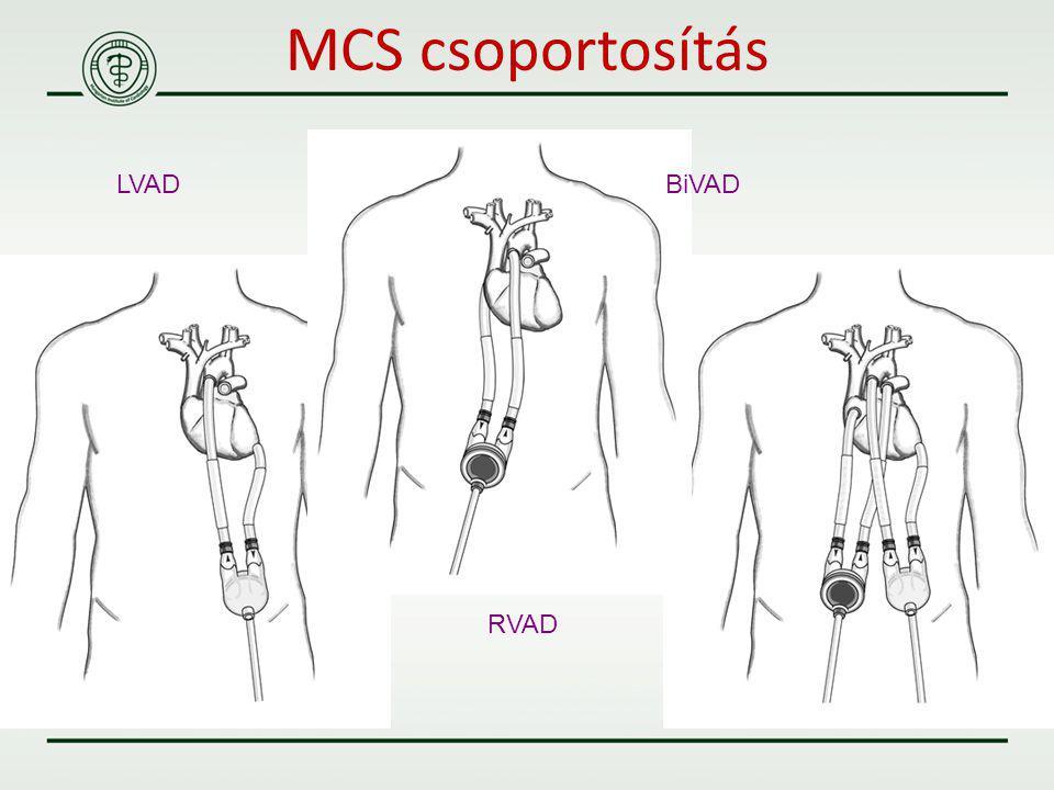 LVAD BiVAD RVAD MCS csoportosítás