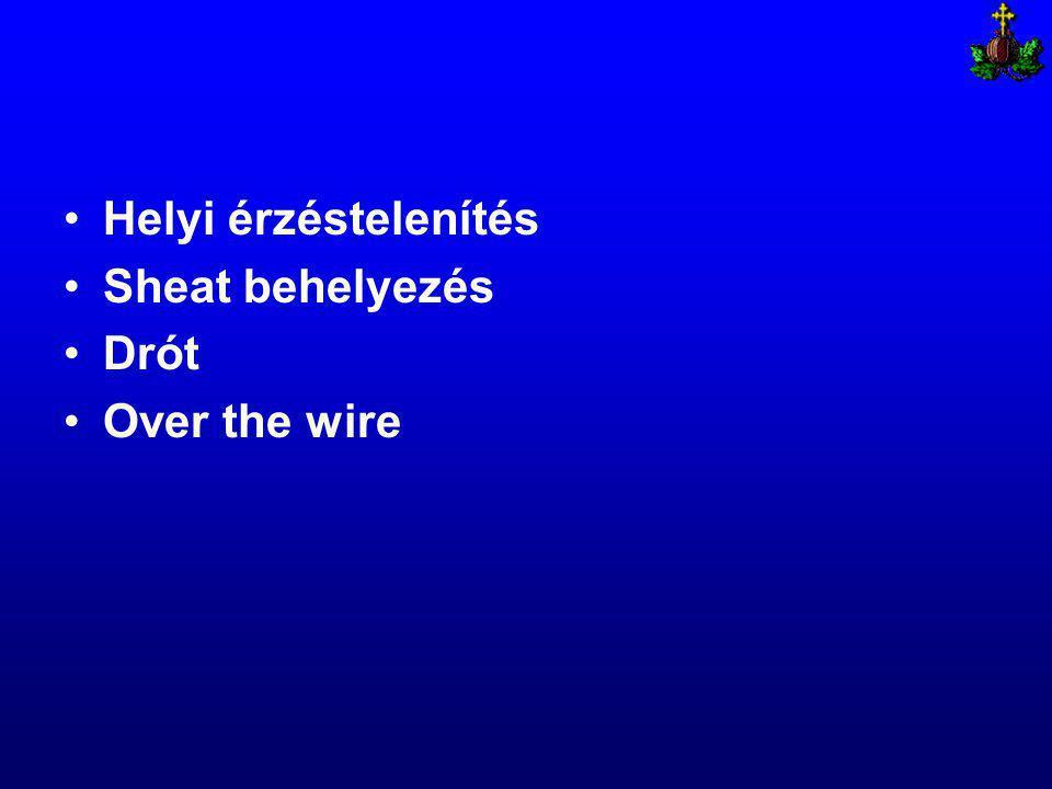 Helyi érzéstelenítés Sheat behelyezés Drót Over the wire
