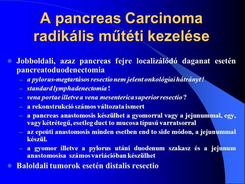 A pancreas Carcinoma radikális műtéti kezelése Jobboldali, azaz pancreas fejre localizálódó daganat esetén pancreatoduodenectomia – a pylorus-megtartásos resectio nem jelent onkológiai hátrányt .