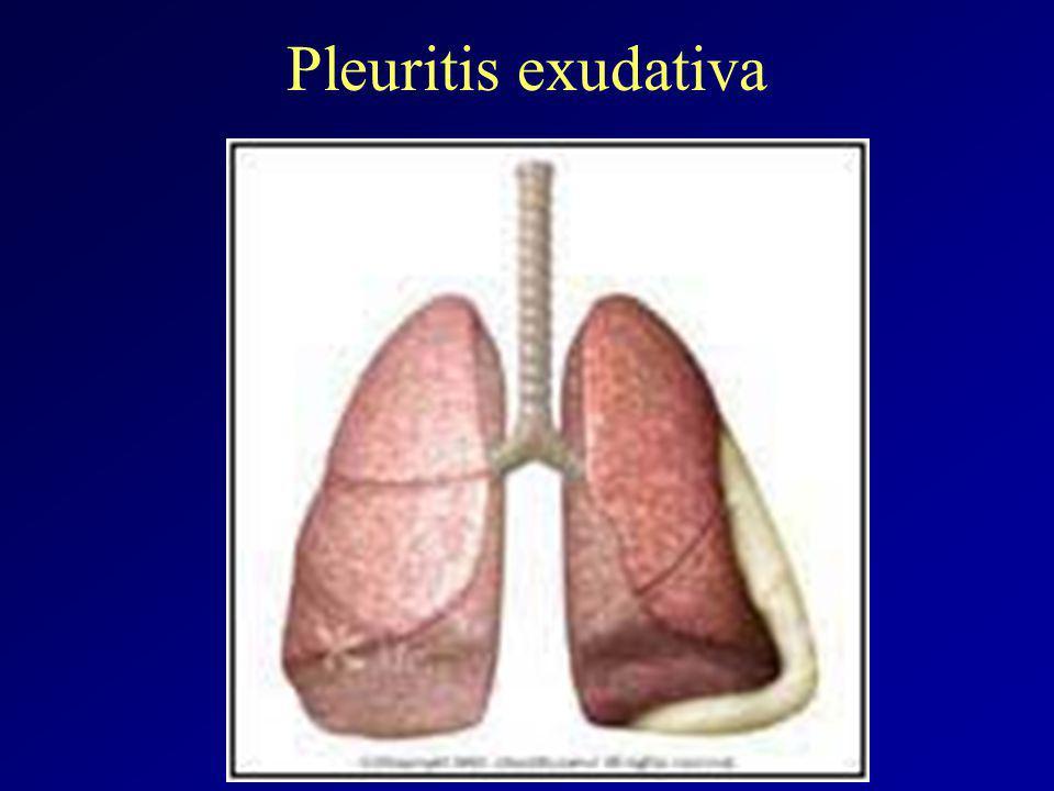 Pleuritis exudativa
