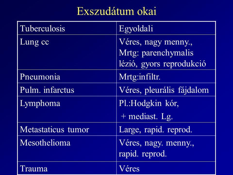 Exszudátum okai TuberculosisEgyoldali Lung ccVéres, nagy menny., Mrtg: parenchymalis lézió, gyors reprodukció PneumoniaMrtg:infiltr. Pulm. infarctusVé