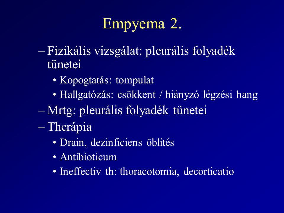 Empyema 2. –Fizikális vizsgálat: pleurális folyadék tünetei Kopogtatás: tompulat Hallgatózás: csökkent / hiányzó légzési hang –Mrtg: pleurális folyadé