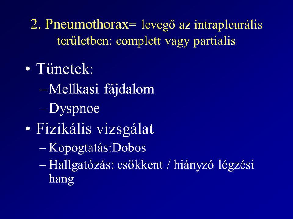 2. Pneumothorax = levegő az intrapleurális területben: complett vagy partialis Tünetek : –Mellkasi fájdalom –Dyspnoe Fizikális vizsgálat –Kopogtatás:D