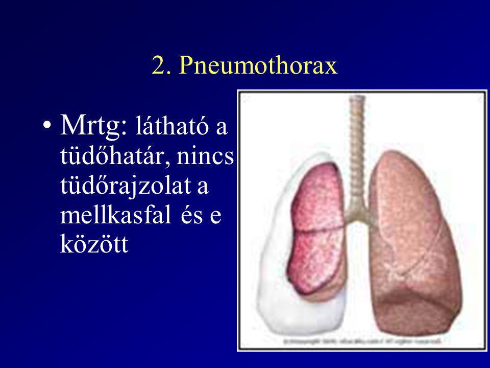 2. Pneumothorax Mrtg: látható a tüdőhatár, nincs tüdőrajzolat a mellkasfal és e között