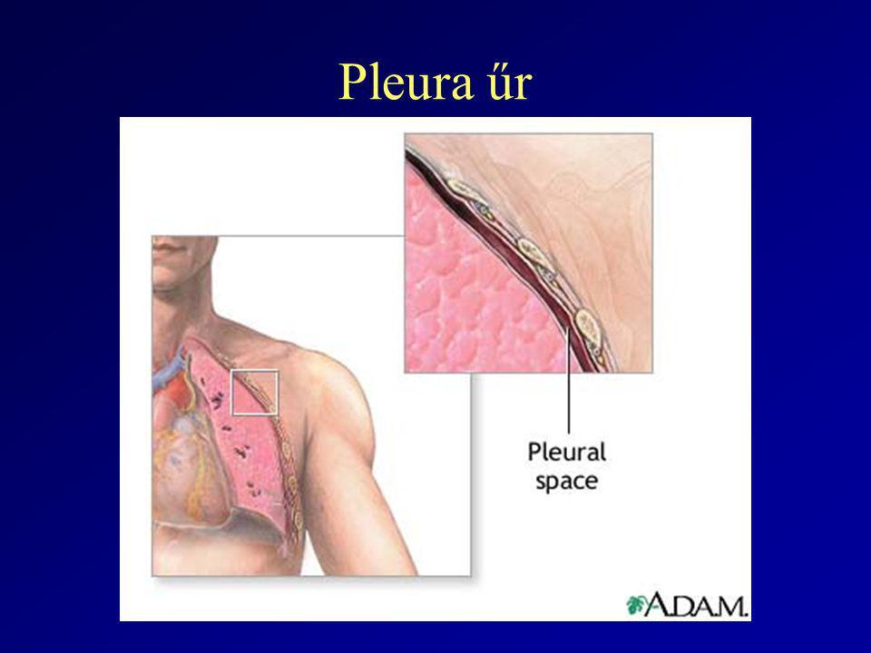 Pleura 1.Apex 2.Lat. mellkasfal 3.Mediastinum 4.diafragma