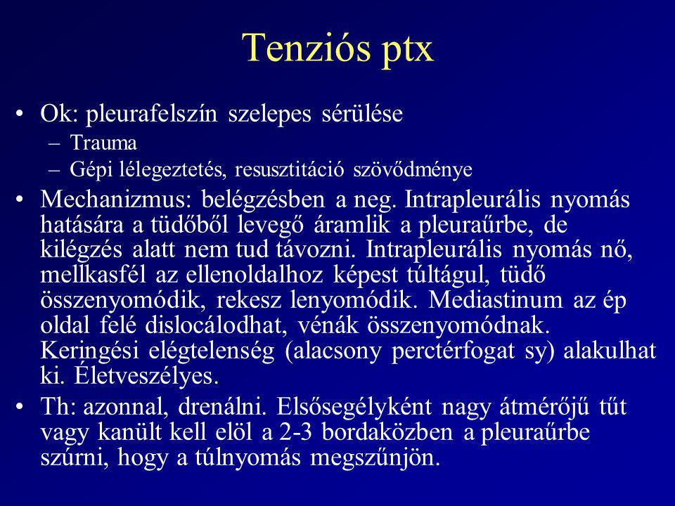 Tenziós ptx Ok: pleurafelszín szelepes sérülése –Trauma –Gépi lélegeztetés, resusztitáció szövődménye Mechanizmus: belégzésben a neg. Intrapleurális n