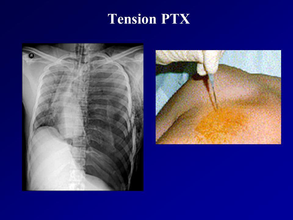 Tension PTX