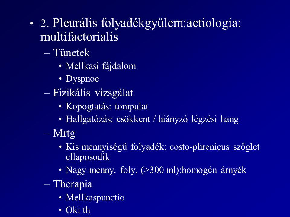 2. Pleurális folyadékgyülem:aetiologia: multifactorialis –Tünetek Mellkasi fájdalom Dyspnoe –Fizikális vizsgálat Kopogtatás: tompulat Hallgatózás: csö