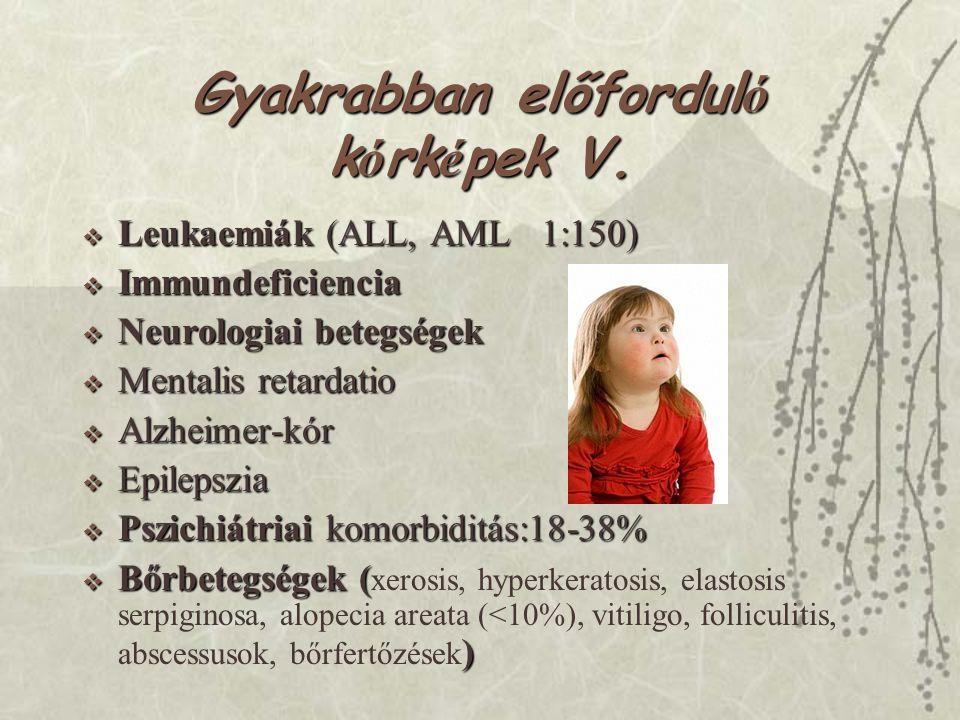 Gyakrabban előfordul ó k ó rk é pek V.  Leukaemiák (ALL, AML 1:150)  Immundeficiencia  Neurologiai betegségek  Mentalis retardatio  Alzheimer-kór