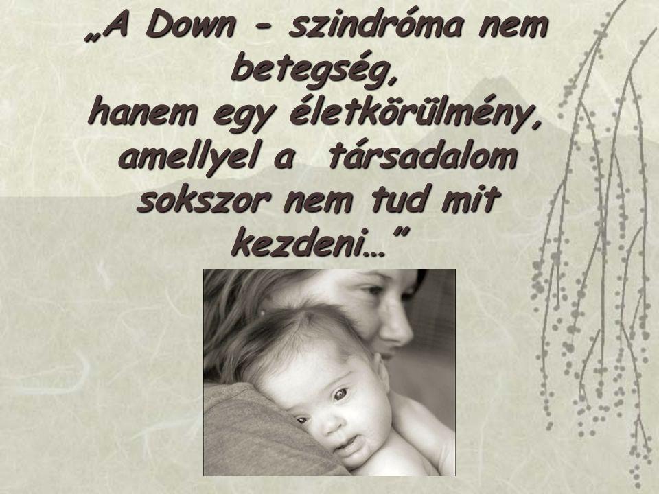 """""""A Down - szindróma nem betegség, hanem egy életkörülmény, amellyel a társadalom sokszor nem tud mit kezdeni…"""""""