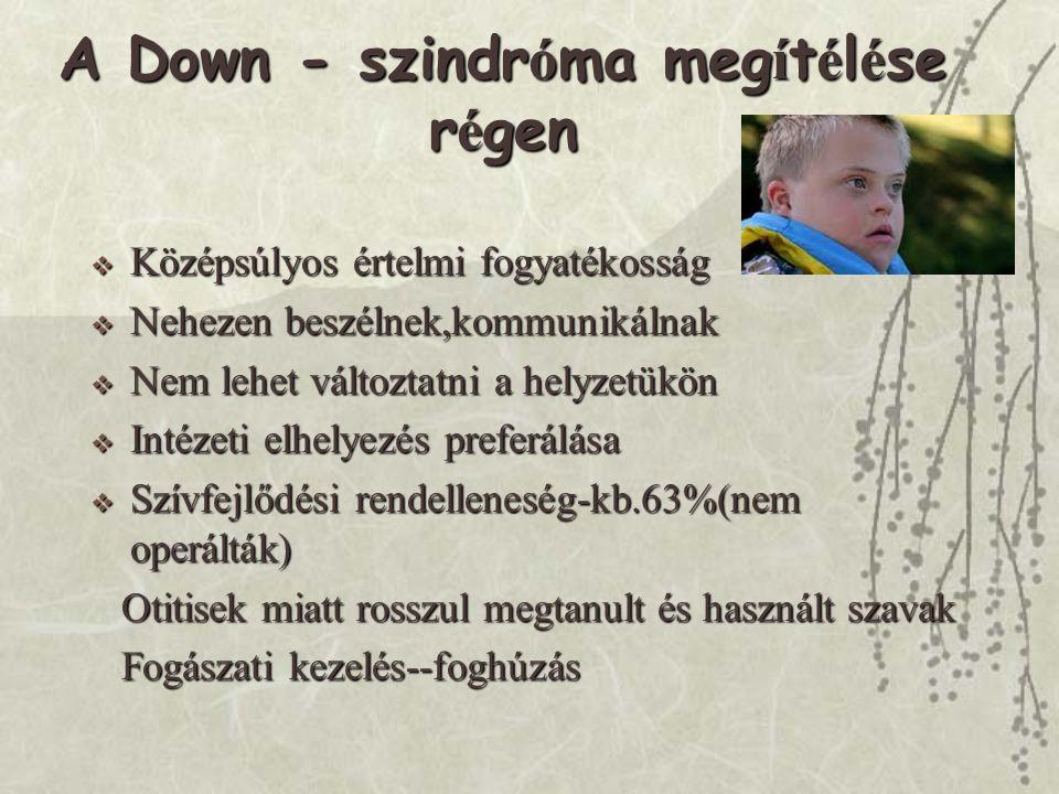 Down Dada Szolg á lat  DS gyermeket nevelő szülők  Országos hálózat,önkéntes  Továbbképzések  Jogi,oktatási-nevelési,mindennapi problémákban nyújt segítséget  Minden megyében, régióban van elérhető Dada