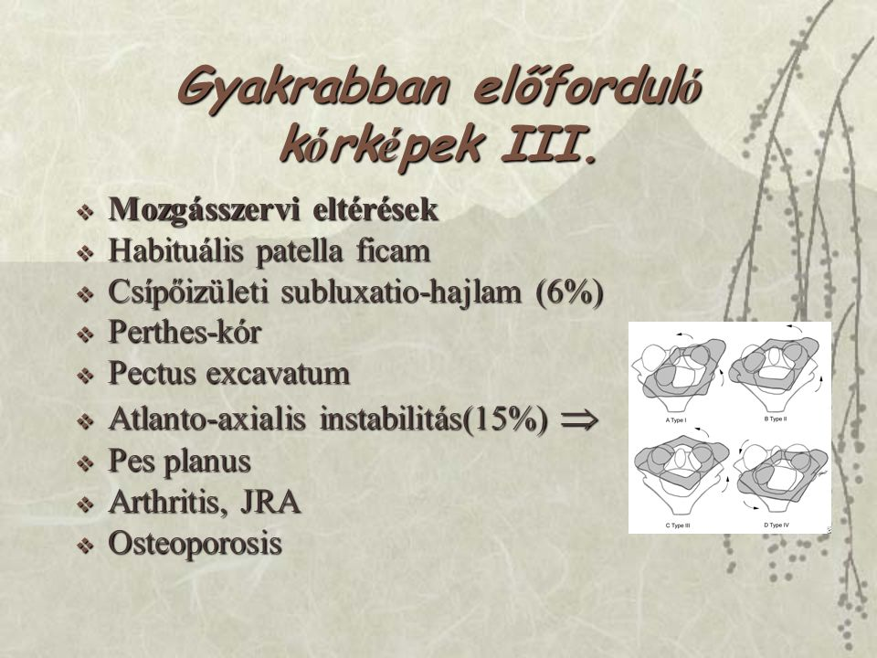 Gyakrabban előfordul ó k ó rk é pek III.  Mozgásszervi eltérések  Habituális patella ficam  Csípőizületi subluxatio-hajlam (6%)  Perthes-kór  Pec