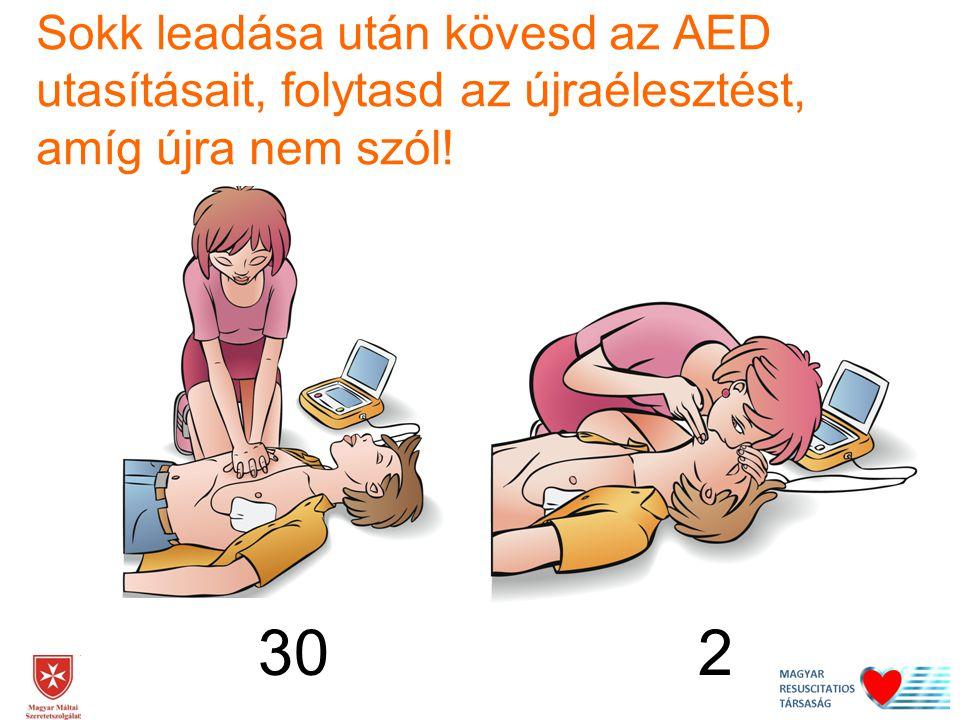 30 2 Sokk leadása után kövesd az AED utasításait, folytasd az újraélesztést, amíg újra nem szól!