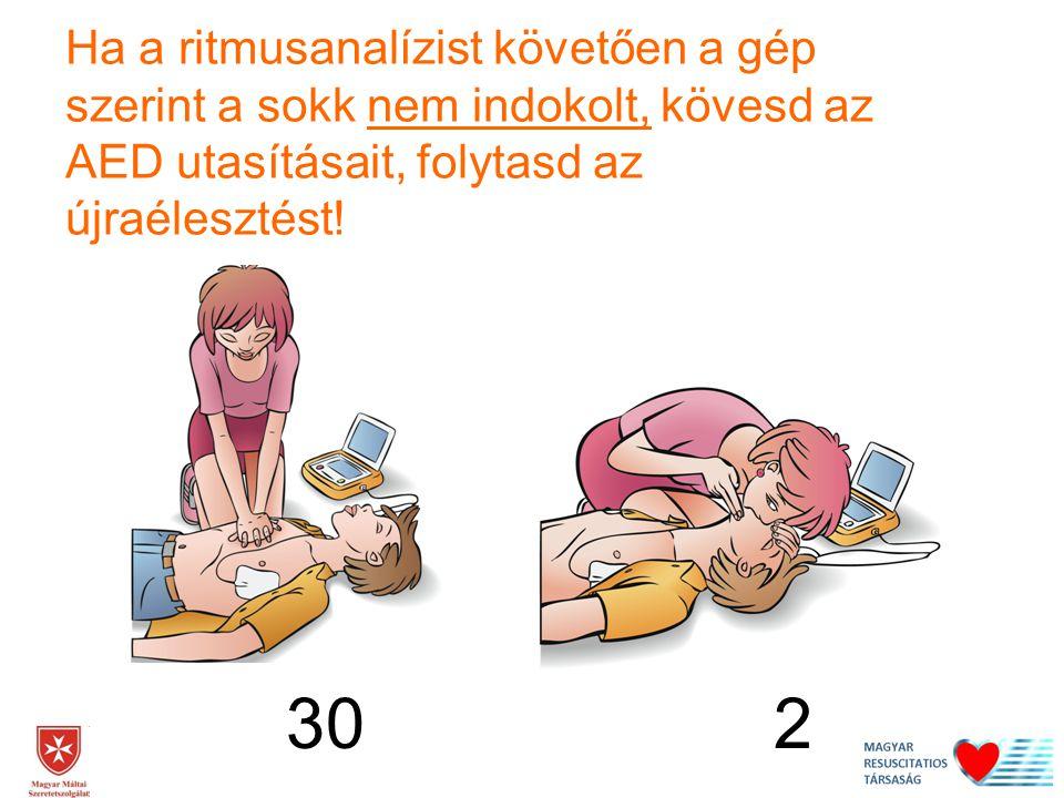 30 2 Ha a ritmusanalízist követően a gép szerint a sokk nem indokolt, kövesd az AED utasításait, folytasd az újraélesztést!