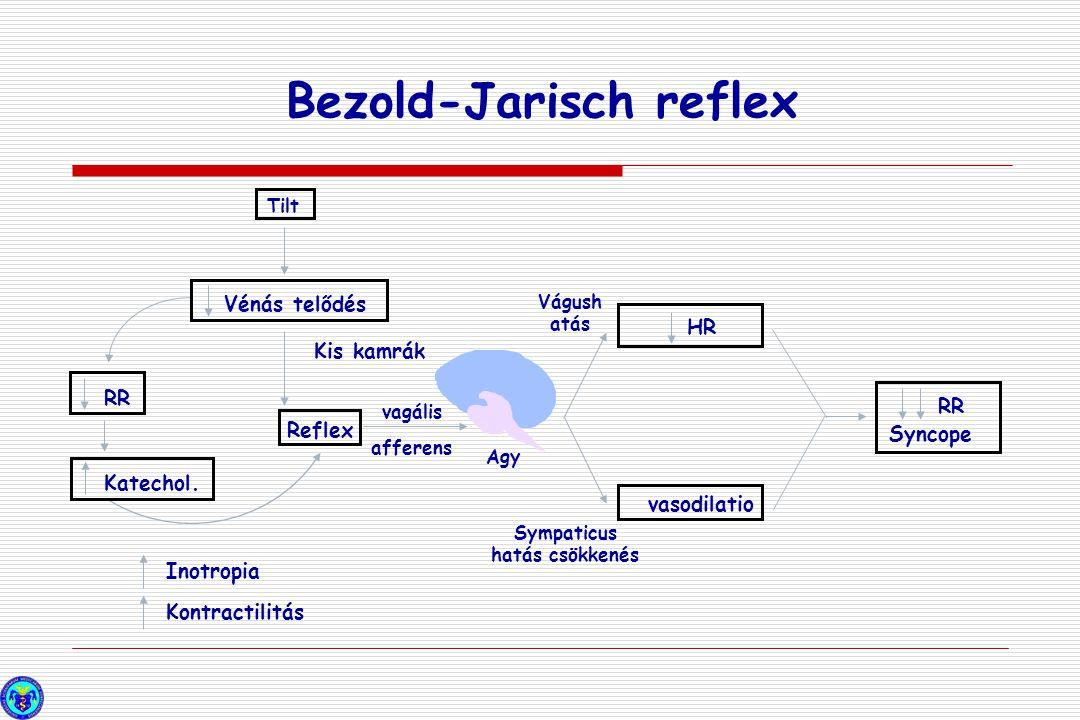 Bezold-Jarisch reflex Inotropia Kontractilitás Katechol. RR Reflex Vénás telődés Tilt HR vasodilatio RR Syncope Vágush atás Kis kamrák vagális afferen