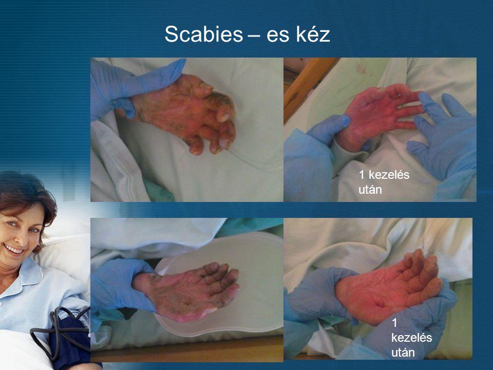 Scabies – es kéz 1 kezelés után