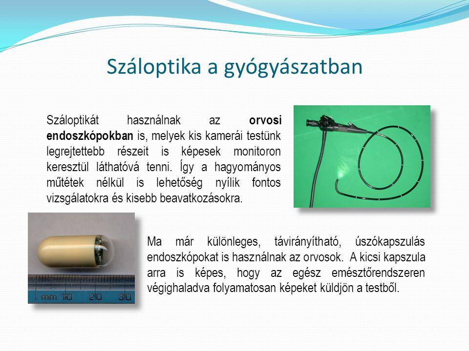 Száloptikát használnak az orvosi endoszkópokban is, melyek kis kamerái testünk legrejtettebb részeit is képesek monitoron keresztül láthatóvá tenni. Í