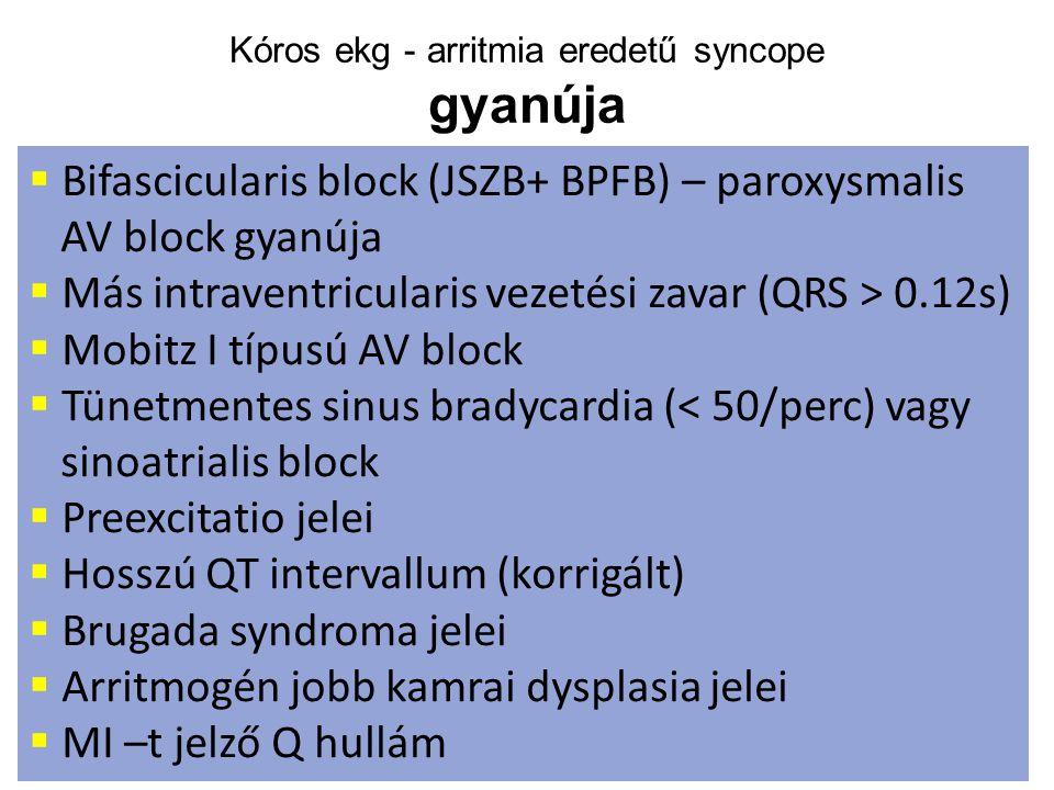 Kóros ekg - arritmia eredetű syncope gyanúja  Bifascicularis block (JSZB+ BPFB) – paroxysmalis AV block gyanúja  Más intraventricularis vezetési zav