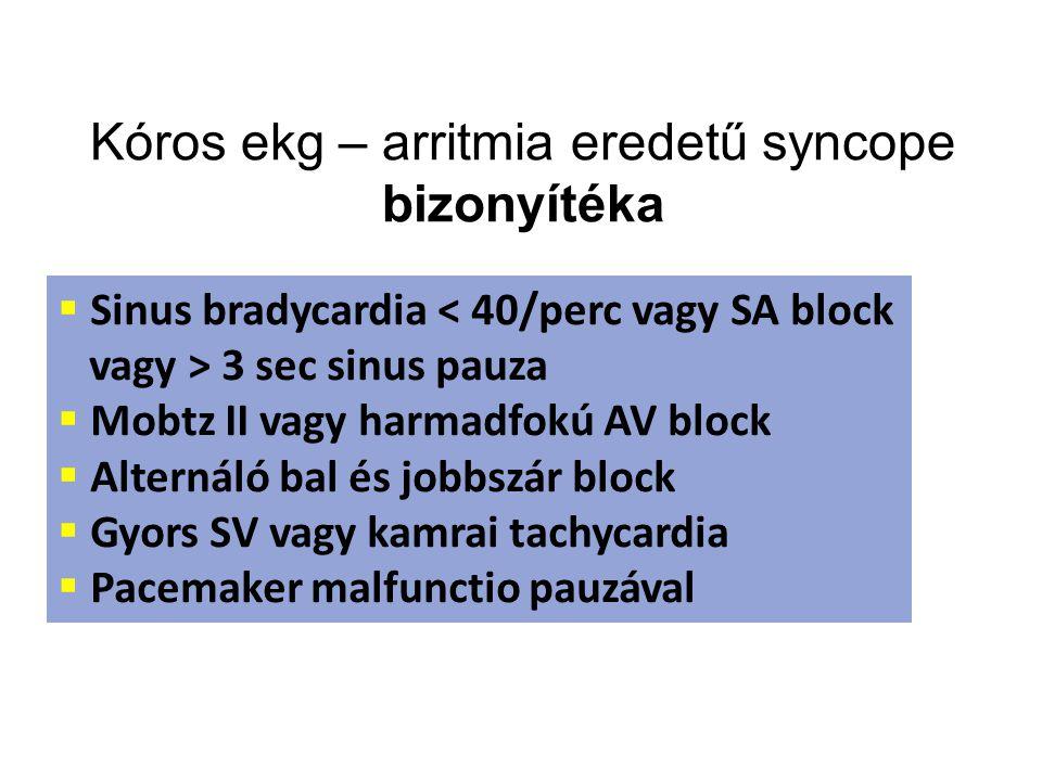 Kóros ekg – arritmia eredetű syncope bizonyítéka  Sinus bradycardia < 40/perc vagy SA block vagy > 3 sec sinus pauza  Mobtz II vagy harmadfokú AV bl