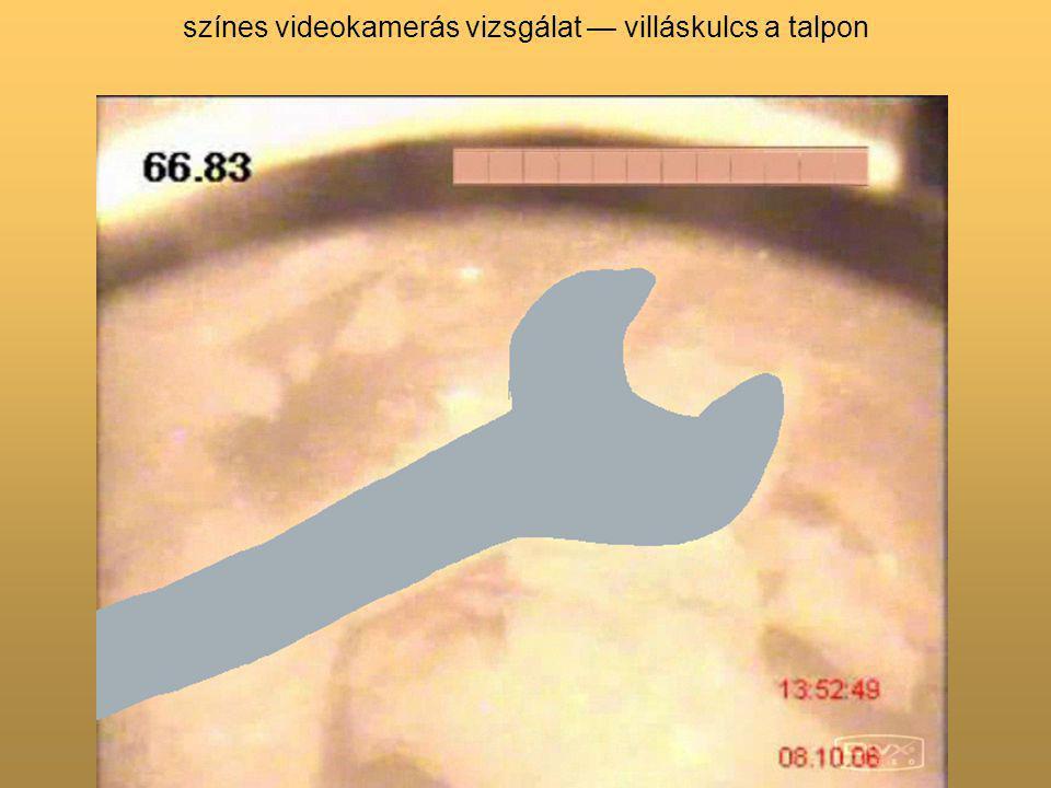 színes videokamerás vizsgálat — villáskulcs a talpon