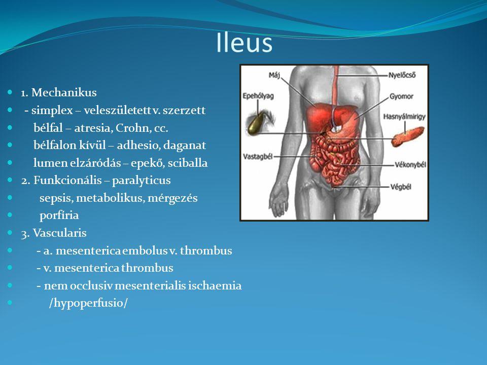 Ileus 1.Mechanikus - simplex – veleszületett v. szerzett bélfal – atresia, Crohn, cc.