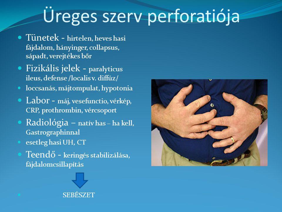 Üreges szerv perforatiója Tünetek - hirtelen, heves hasi fájdalom, hányinger, collapsus, sápadt, verejtékes bőr Fizikális jelek - paralyticus ileus, defense /localis v.