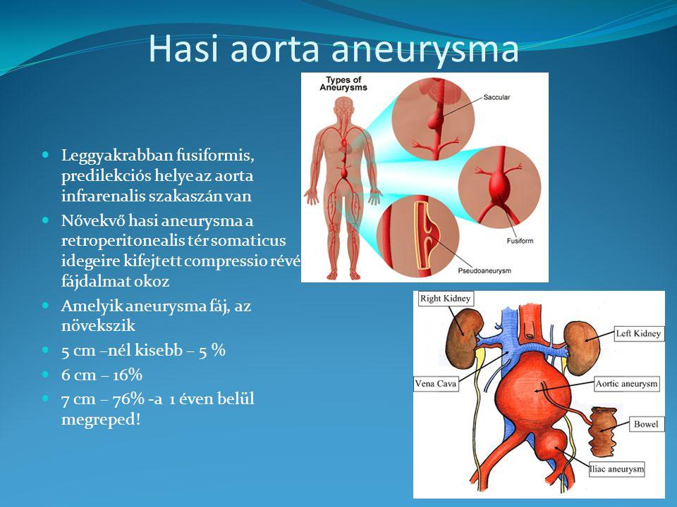 Hasi aorta aneurysma Leggyakrabban fusiformis, predilekciós helye az aorta infrarenalis szakaszán van Nővekvő hasi aneurysma a retroperitonealis tér somaticus idegeire kifejtett compressio révén fájdalmat okoz Amelyik aneurysma fáj, az növekszik 5 cm –nél kisebb – 5 % 6 cm – 16% 7 cm – 76% -a 1 éven belül megreped!