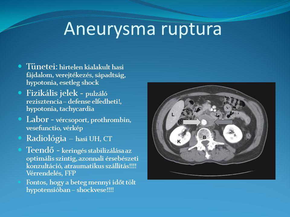 Aneurysma ruptura Tünetei: hirtelen kialakult hasi fájdalom, verejtékezés, sápadtság, hypotonia, esetleg shock Fizikális jelek - pulzáló rezisztencia – defense elfedheti!, hypotonia, tachycardia Labor - vércsoport, prothrombin, vesefunctio, vérkép Radiológia – hasi UH, CT Teendő - keringés stabilizálása az optimális szintig, azonnali érsebészeti konzultáció, atraumatikus szállítás!!!.