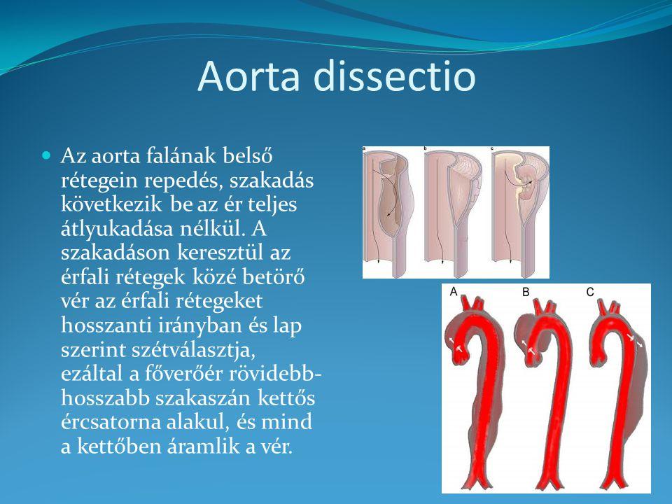 Aorta dissectio Az aorta falának belső rétegein repedés, szakadás következik be az ér teljes átlyukadása nélkül. A szakadáson keresztül az érfali réte