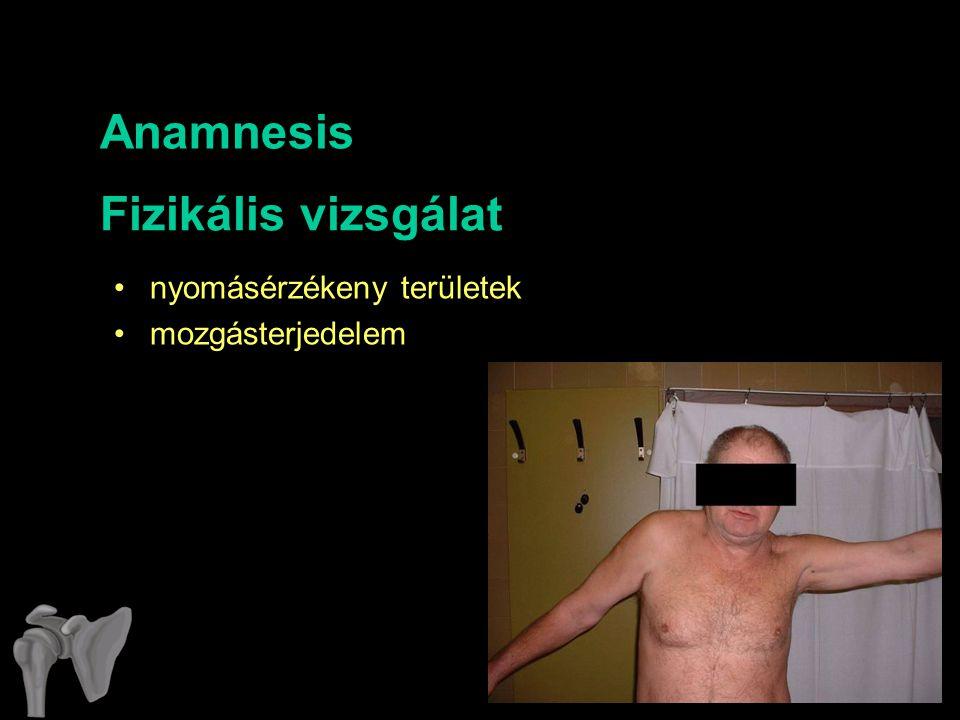 Anamnesis nyomásérzékeny területek mozgásterjedelem Fizikális vizsgálat