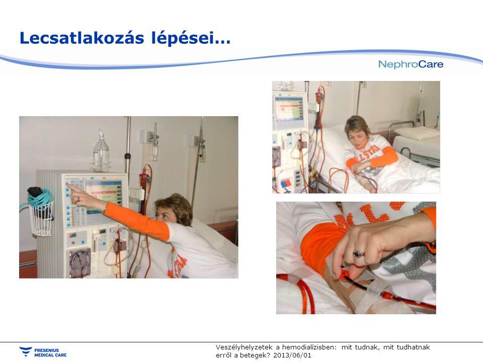 Lecsatlakozás lépései… Veszélyhelyzetek a hemodialízisben: mit tudnak, mit tudhatnak erről a betegek.