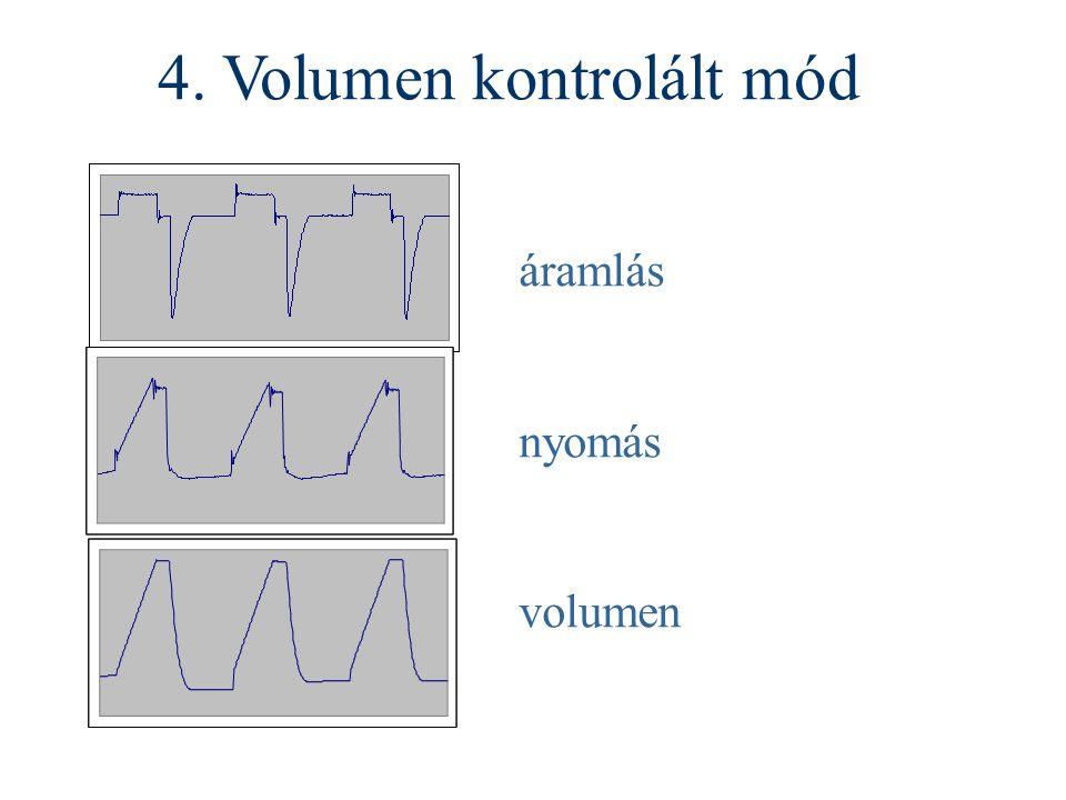 áramlás nyomás volumen 4. Volumen kontrolált mód
