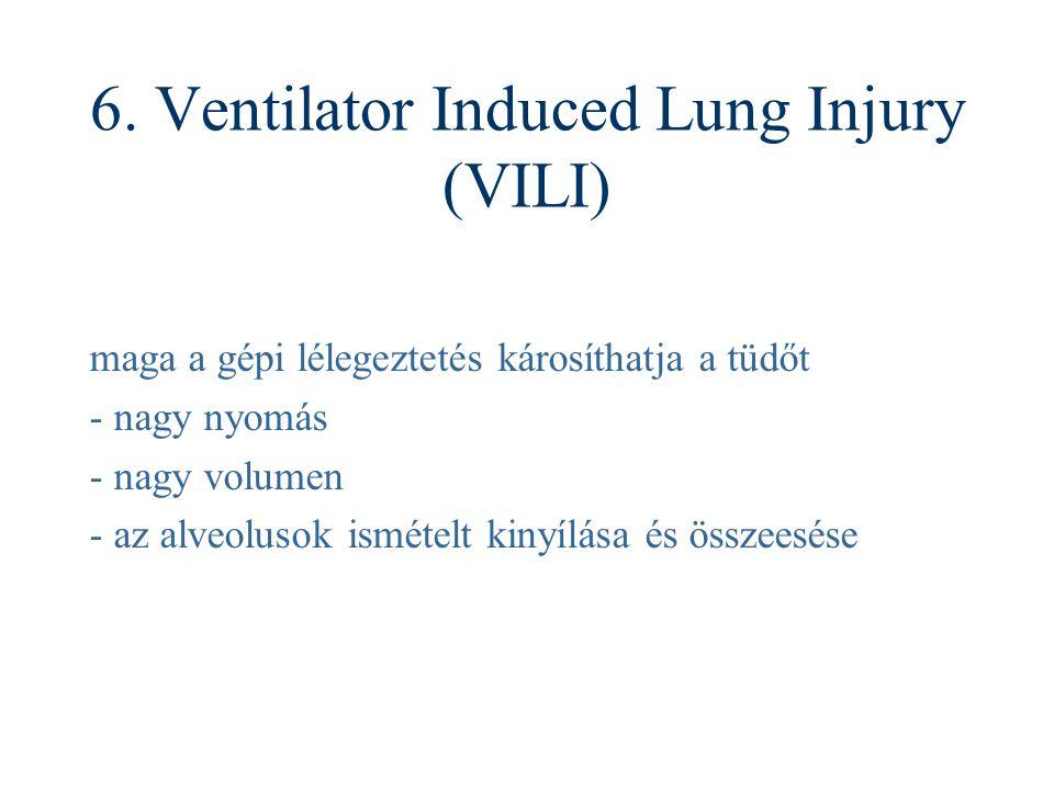 6. Ventilator Induced Lung Injury (VILI) maga a gépi lélegeztetés károsíthatja a tüdőt - nagy nyomás - nagy volumen - az alveolusok ismételt kinyílása