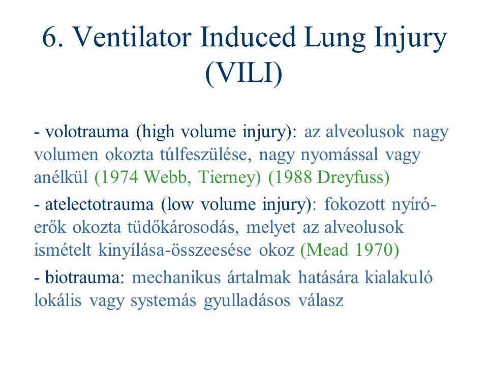 6. Ventilator Induced Lung Injury (VILI) - volotrauma (high volume injury): az alveolusok nagy volumen okozta túlfeszülése, nagy nyomással vagy anélkü