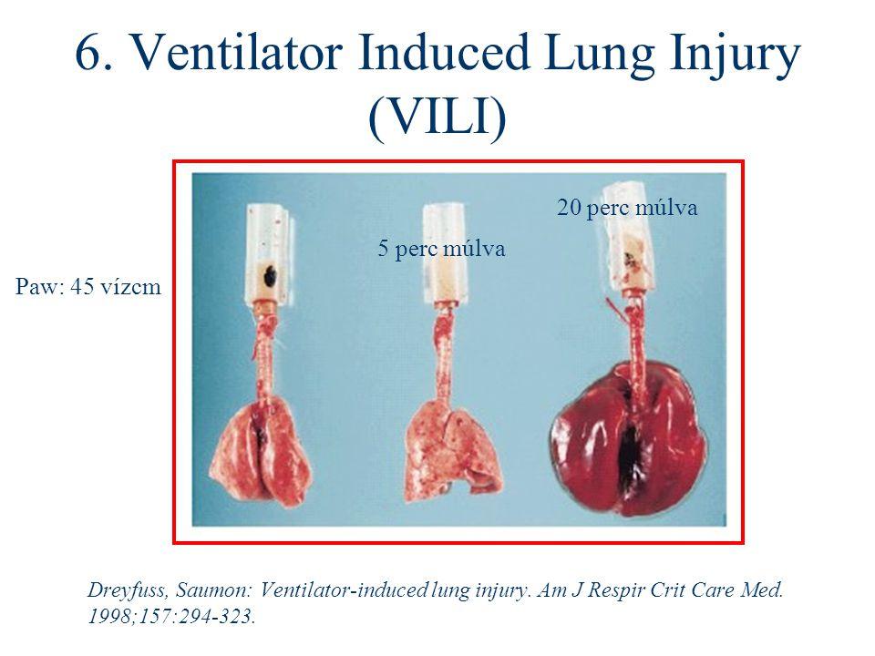 6. Ventilator Induced Lung Injury (VILI) Dreyfuss, Saumon: Ventilator-induced lung injury. Am J Respir Crit Care Med. 1998;157:294-323. Paw: 45 vízcm